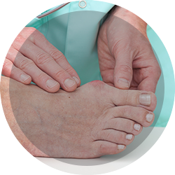 bunion treatment in chelsea