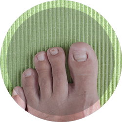 Ingrown toenail tretament in chelsea